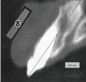 oblique-surface-1